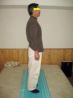 50代男性 ぎっくり腰施術後