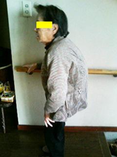 70代女性 腰痛 施術後