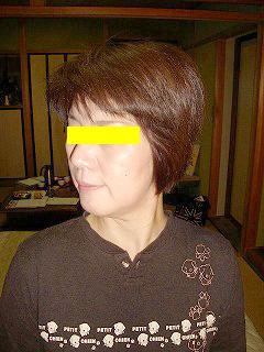 50代女性 頚椎ヘルニア 施術前