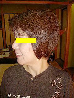 50代女性 頚椎ヘルニア 施術後